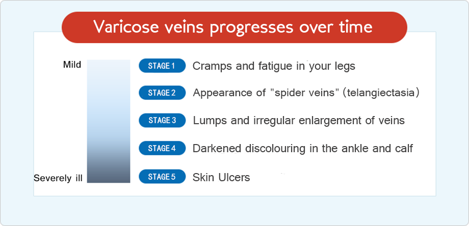 Varicose veins progresses over time.