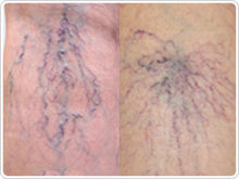 Minor cases of varicose veins