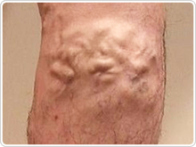 Small trunk varicose veins (Small Saphenous vein)