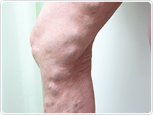 Large trunk varicose veins (Large Saphenous vein)